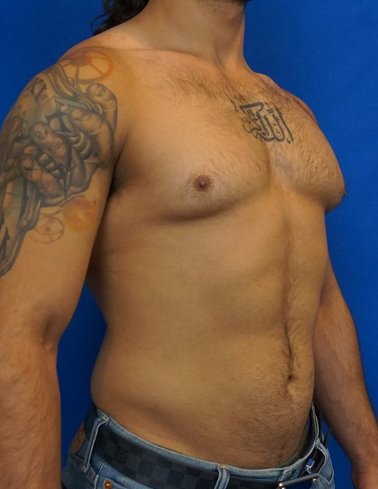 Gynecomastia Surgeon Las Vegas Before