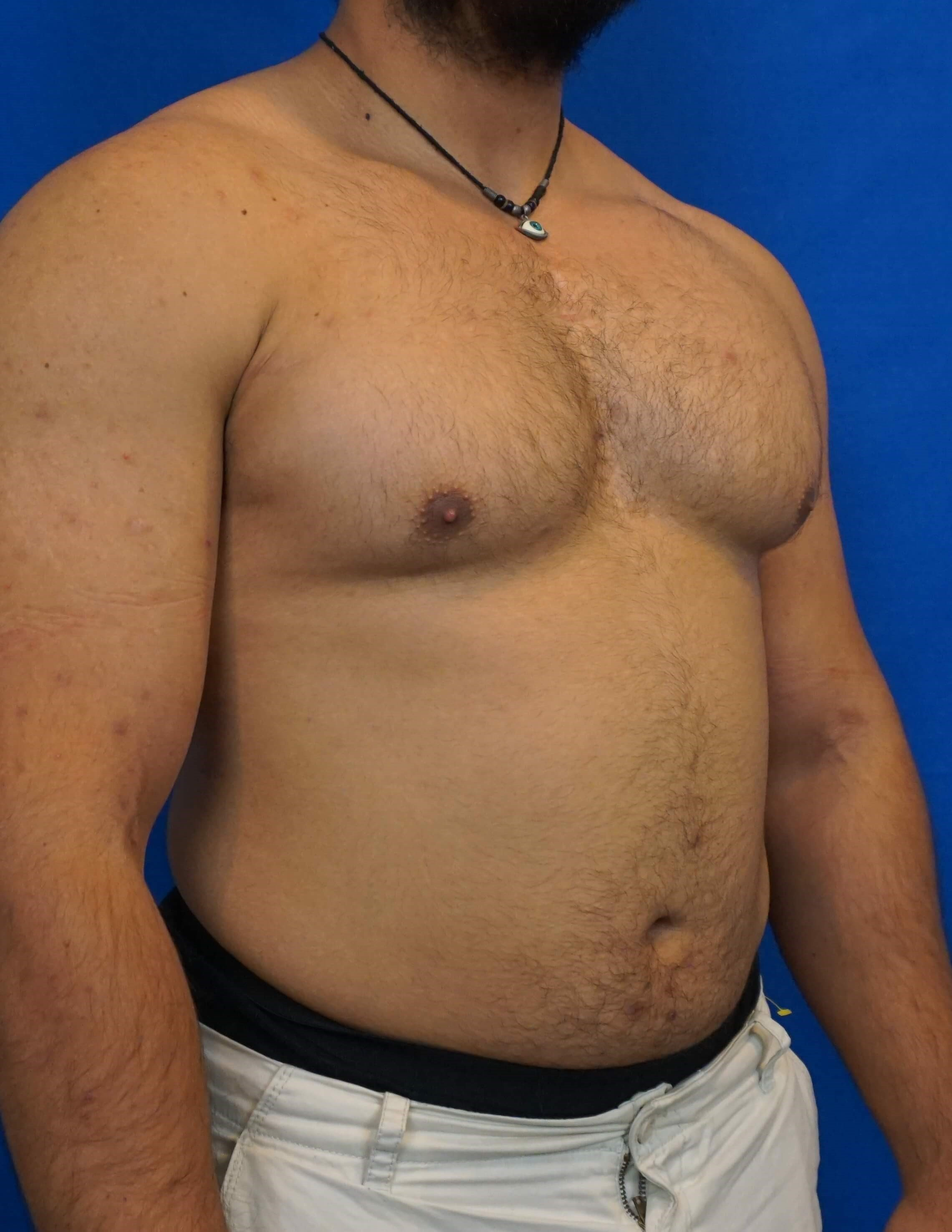 Gynecomastia Surgery Las Vegas Before