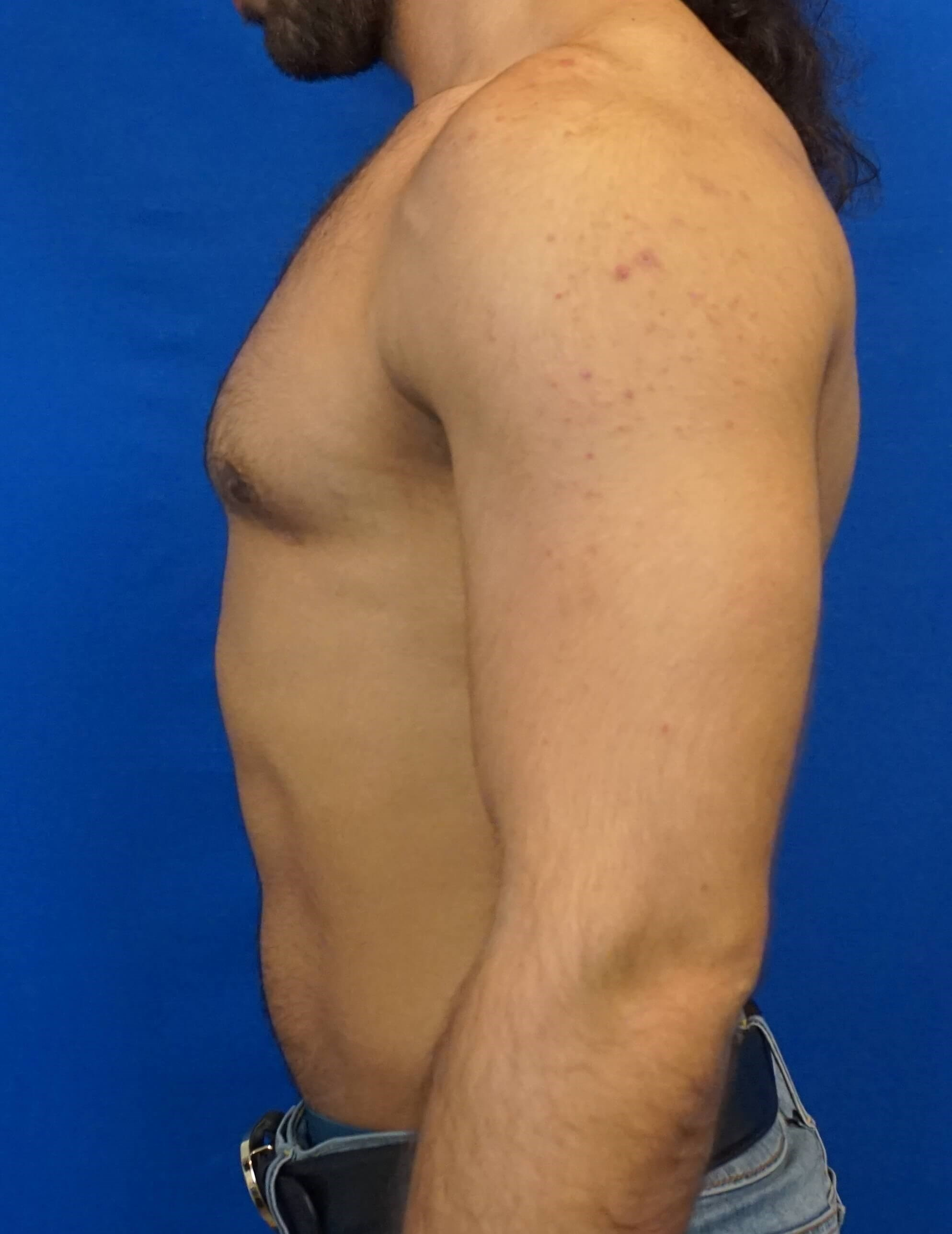 Gynecomastia Surgeon Las Vegas After