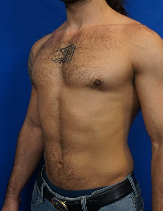 Gynecomastia Surgery Las Vegas After
