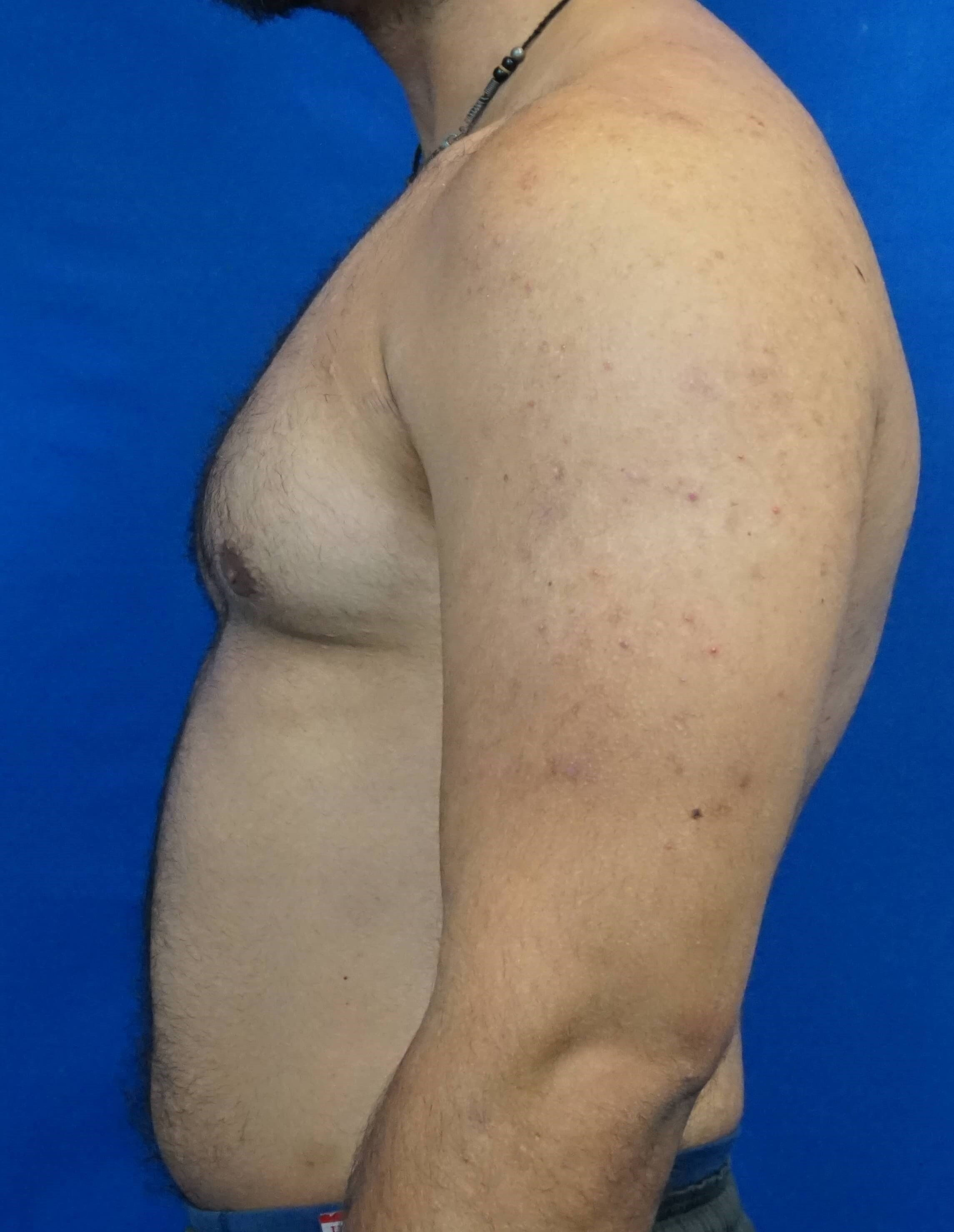 Male Breast Surgery After