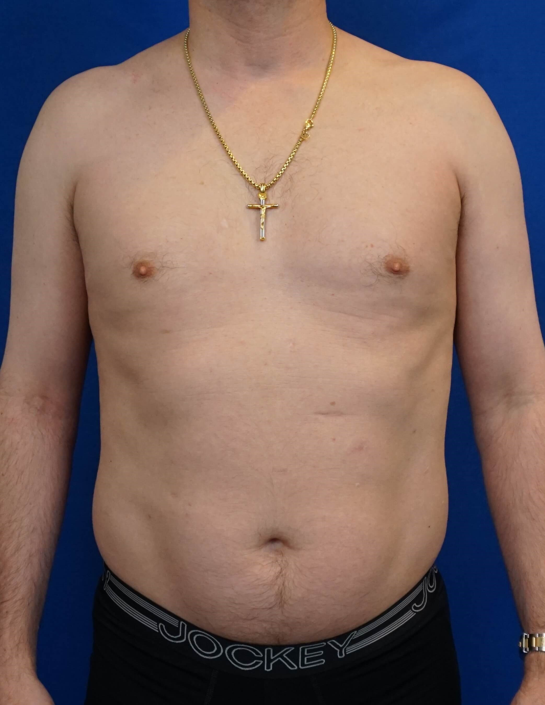 HiDefinition Liposuction Before