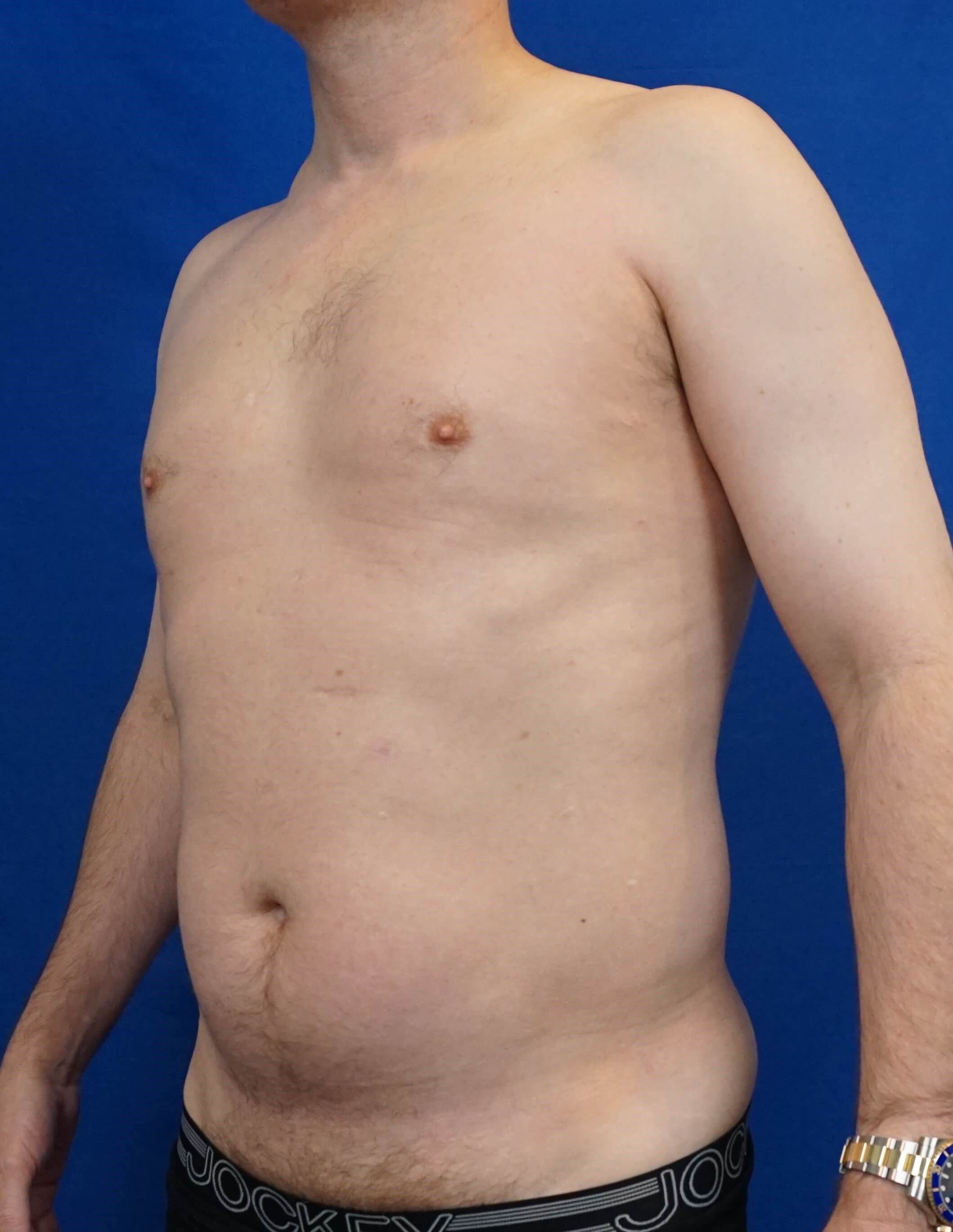 Vaser Liposuction Before