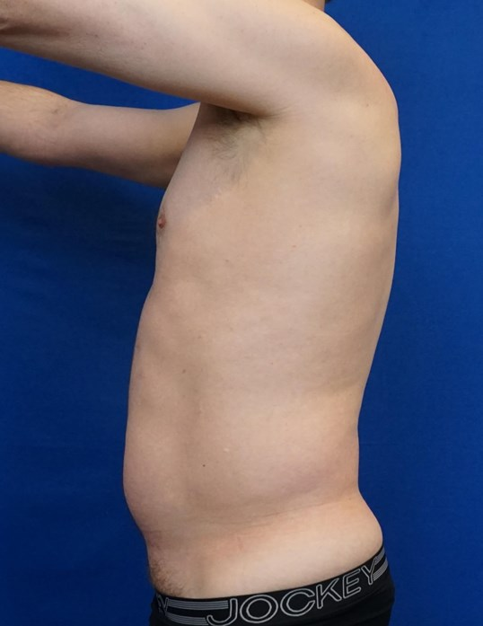Liposuction Las Vegas Before