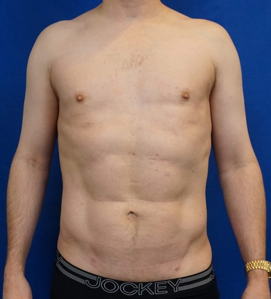 HiDefinition Liposuction After
