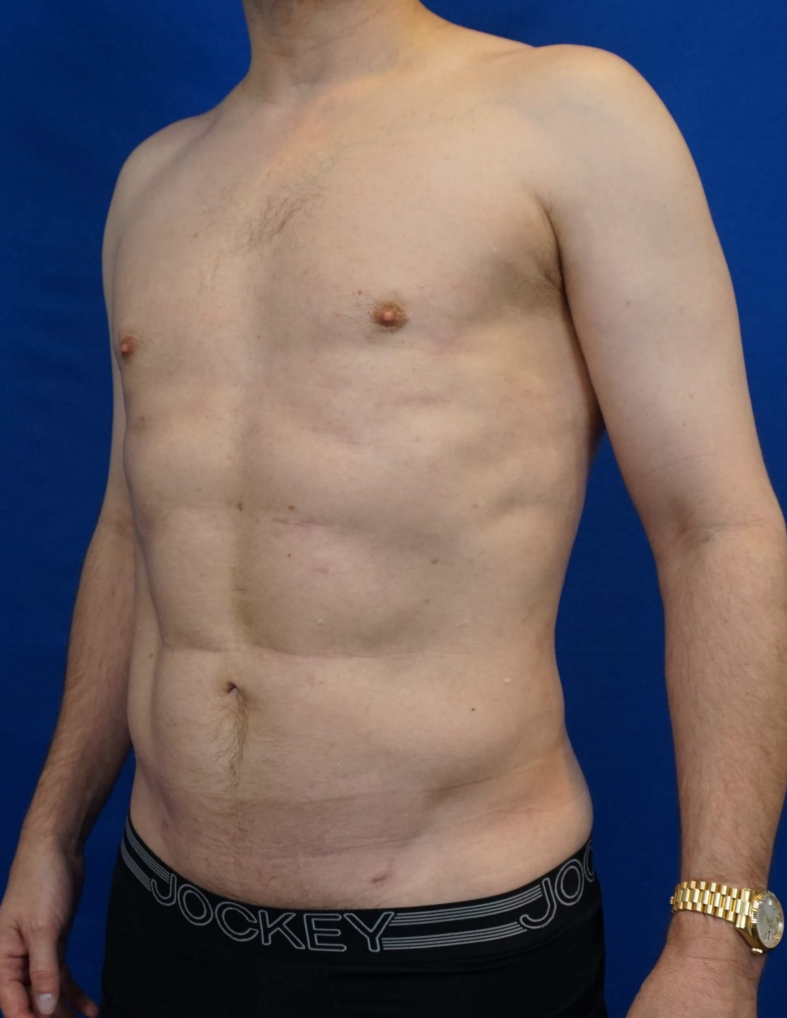 Vaser Liposuction After