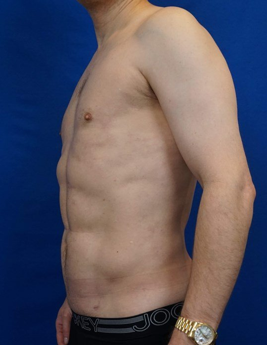Vaser Hi Def Liposuction After
