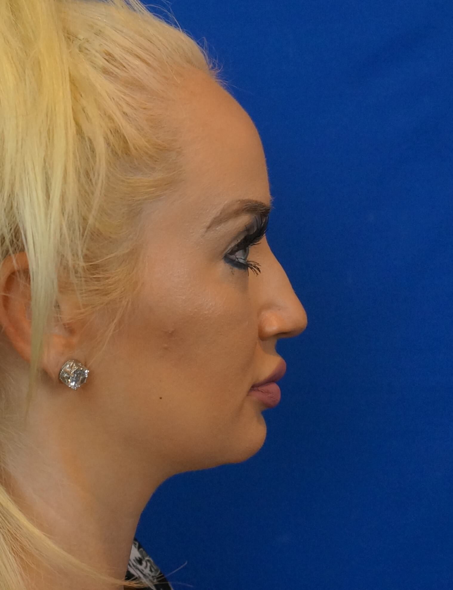 Rhinoplasty Surgeon Las Vegas Before Photo