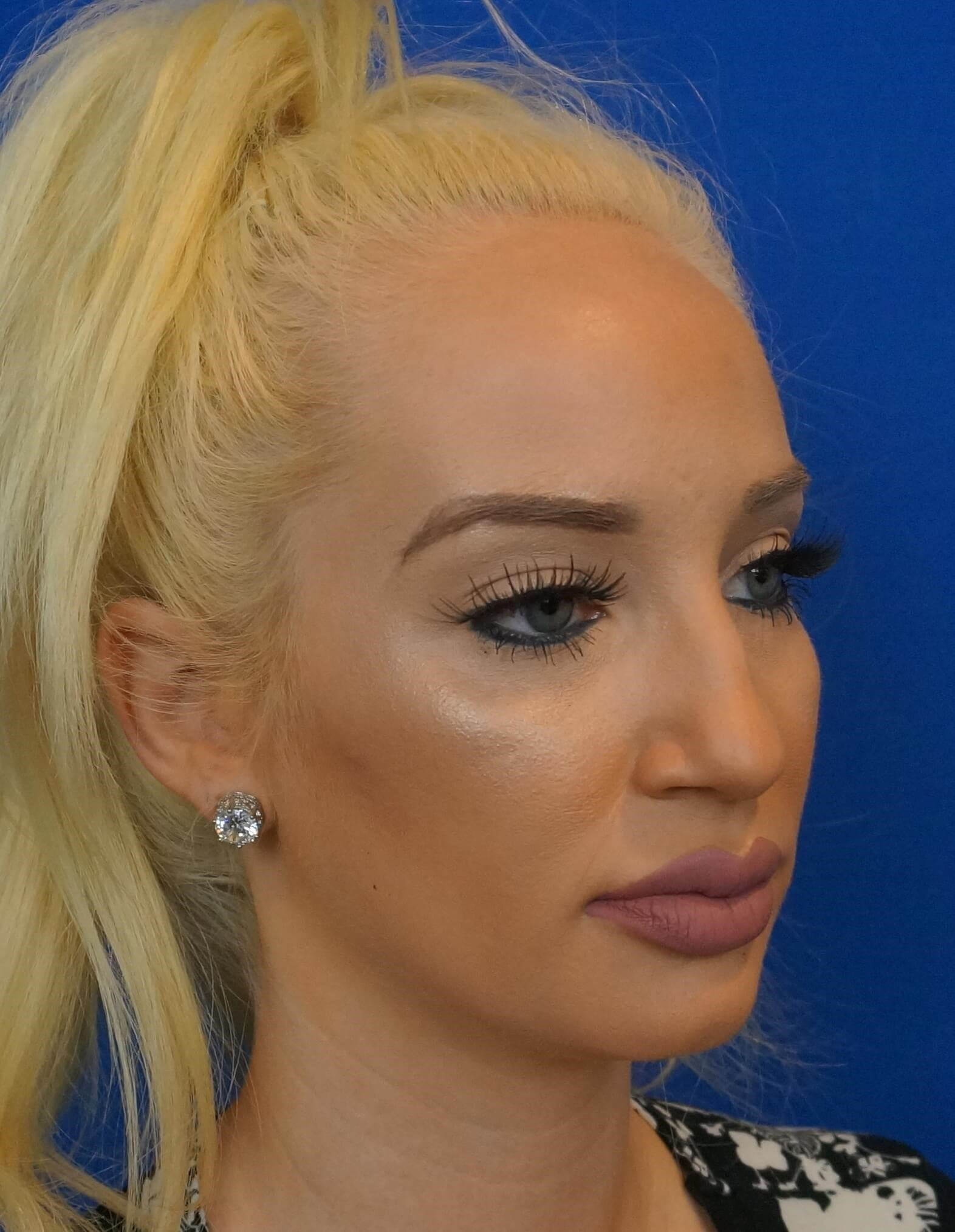 Rhinoplasty Surgeon Las Vegas Before Rhinoplasty Photo