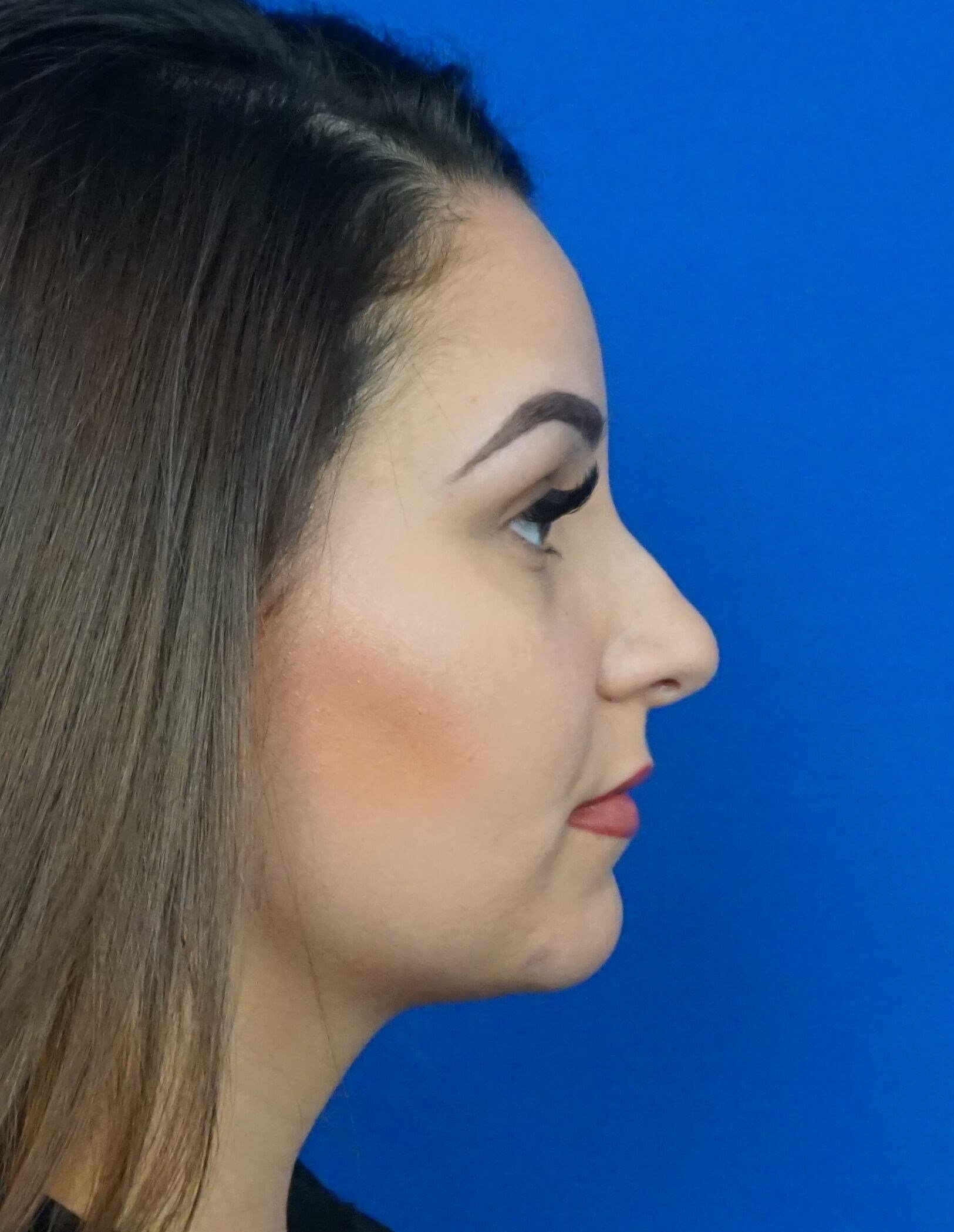 Rhinoplasty Las Vegas Before