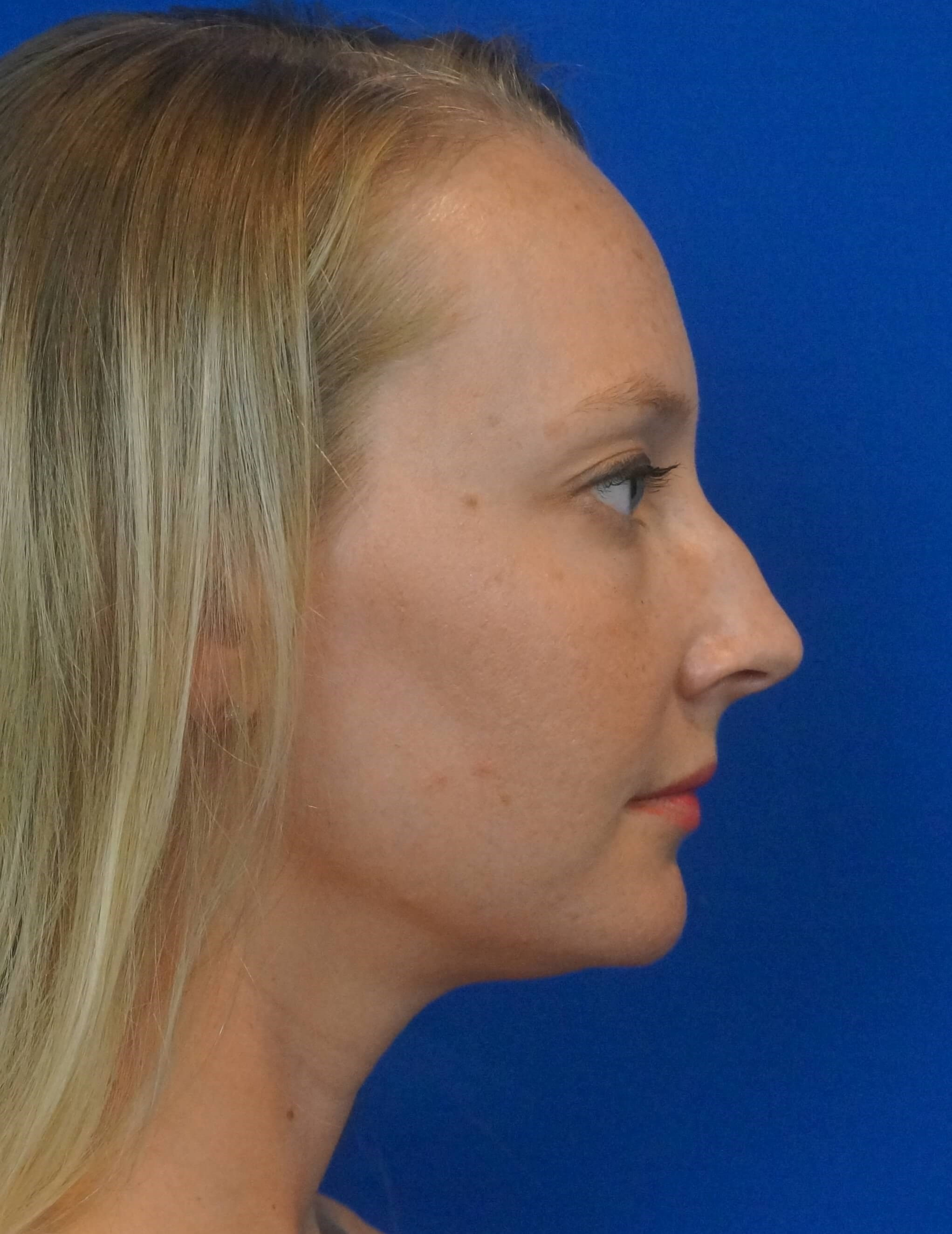 Rhinoplasty Surgeon Las Vegas Before