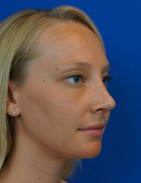 Rhinoplasty Photos After