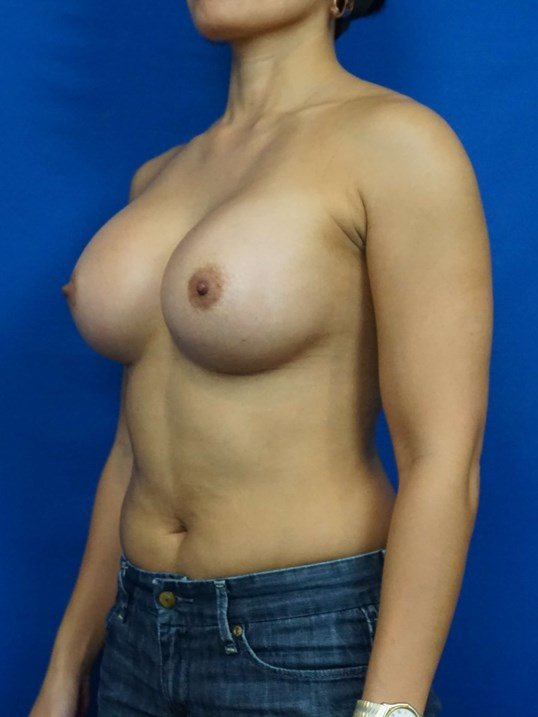 Breast Implant Photos After