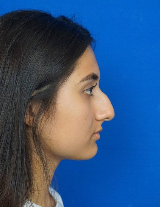 Rhinoplasty Surgery Las Vegas Before Rhinoplasty Picture