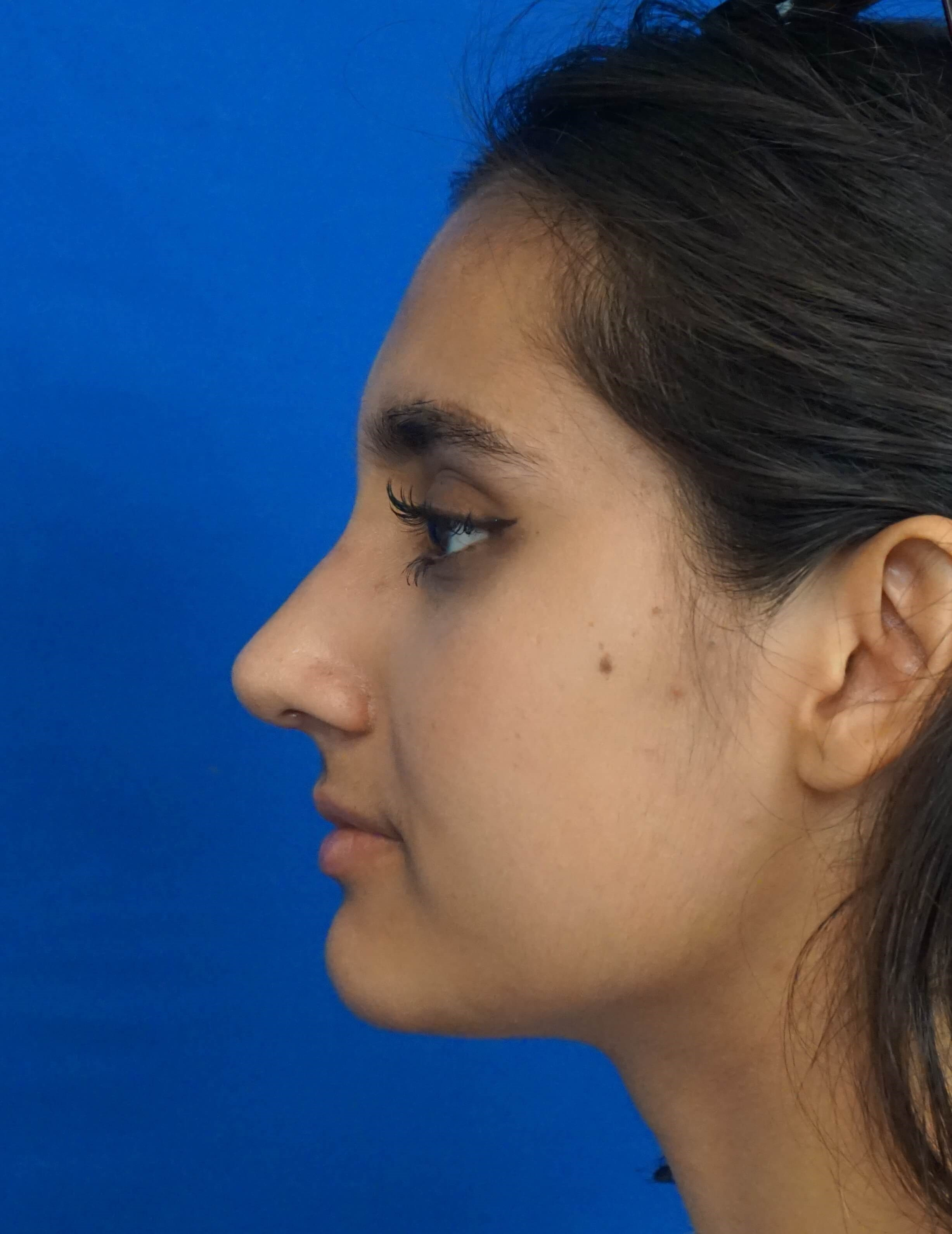 Rhinoplasty Surgeon Las Vegas After Rhinoplasty Picture