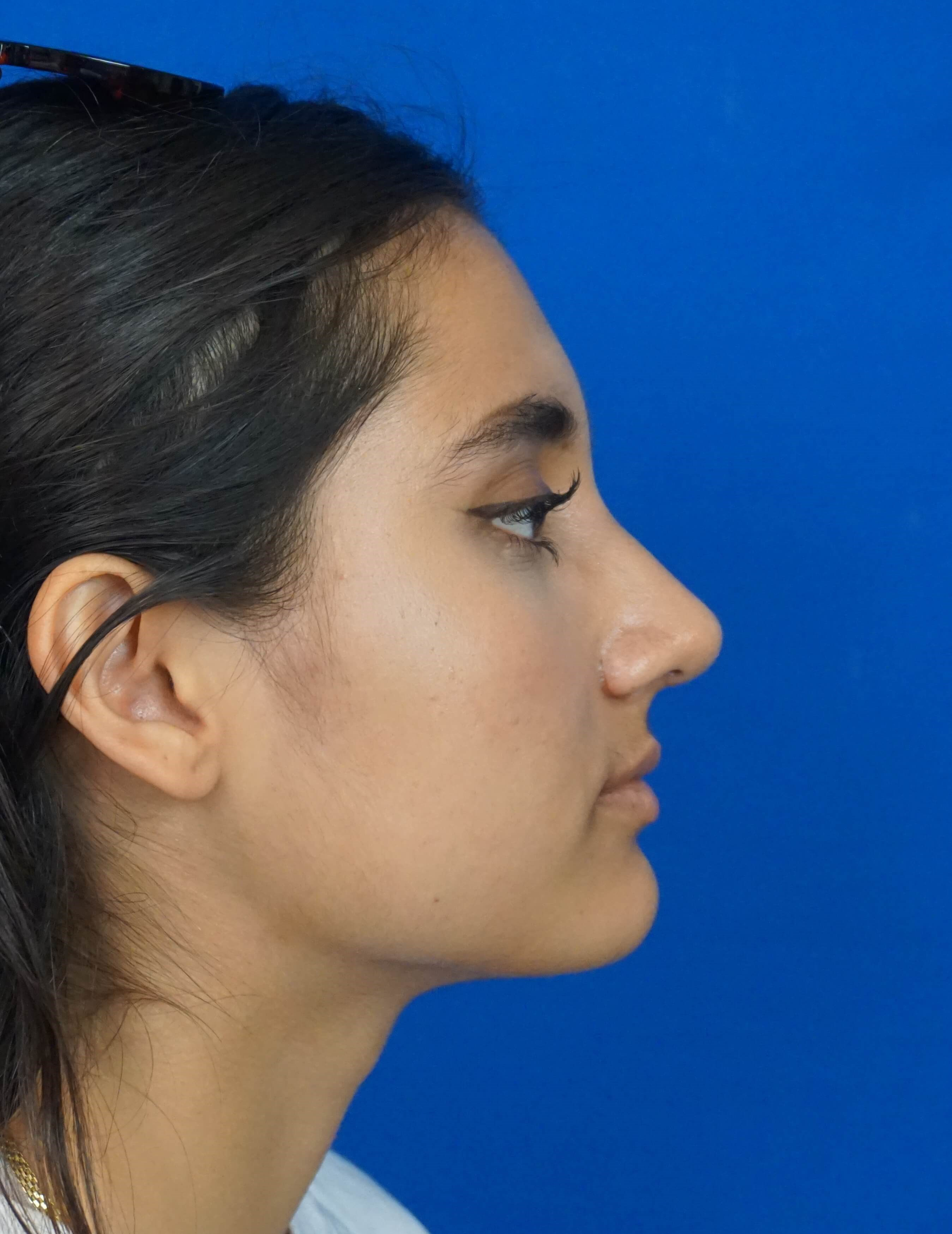 Rhinoplasty Surgery Las Vegas After Rhinoplasty Picture