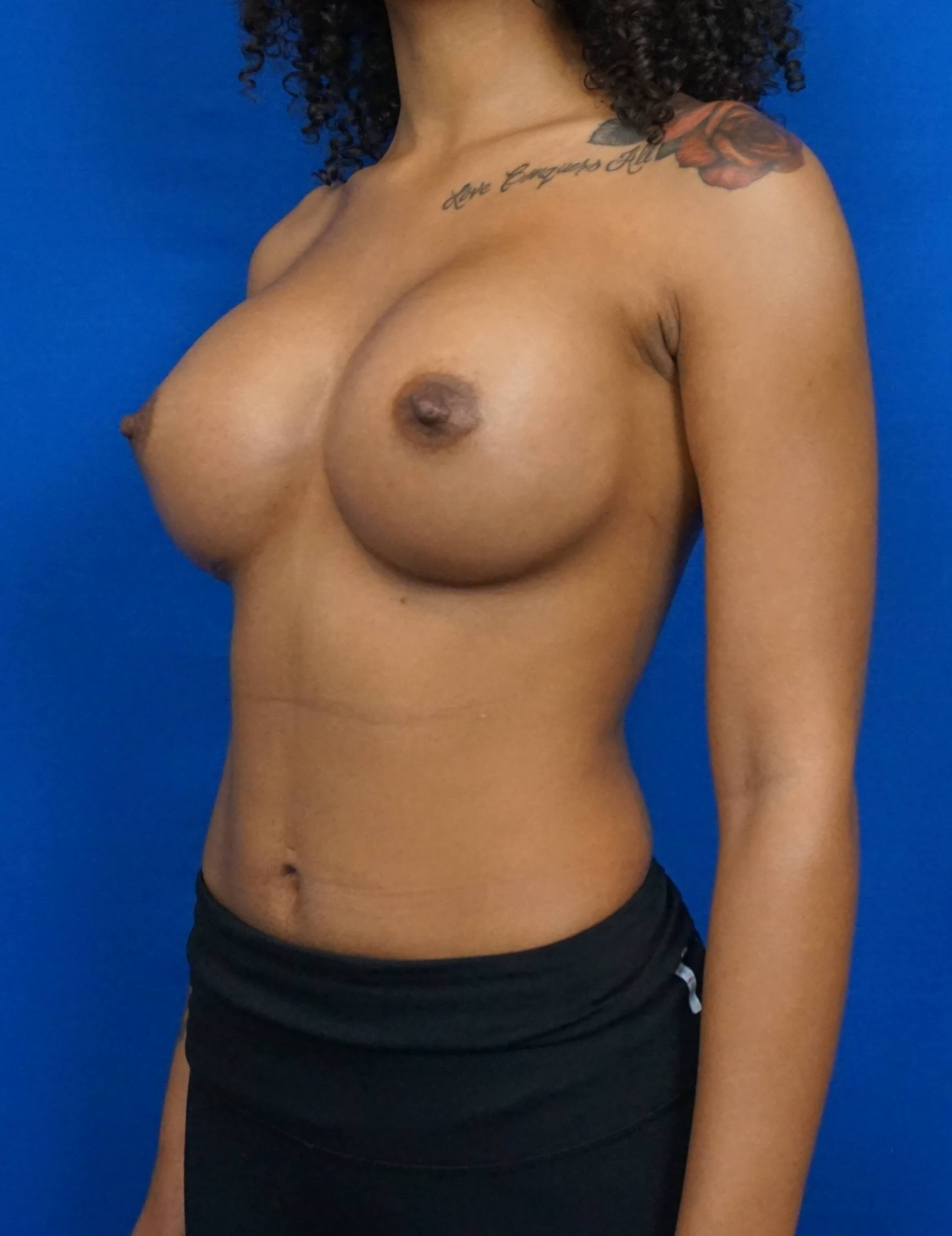 Breast Augmentation Las Vegas After Vegas Breast Implant