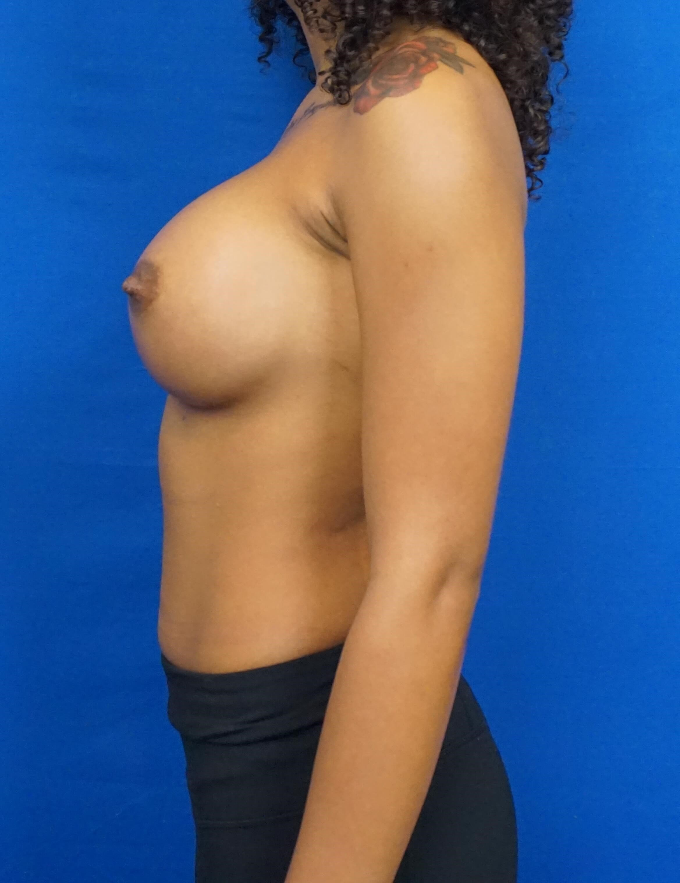 Breast Augmentation Las vegas After