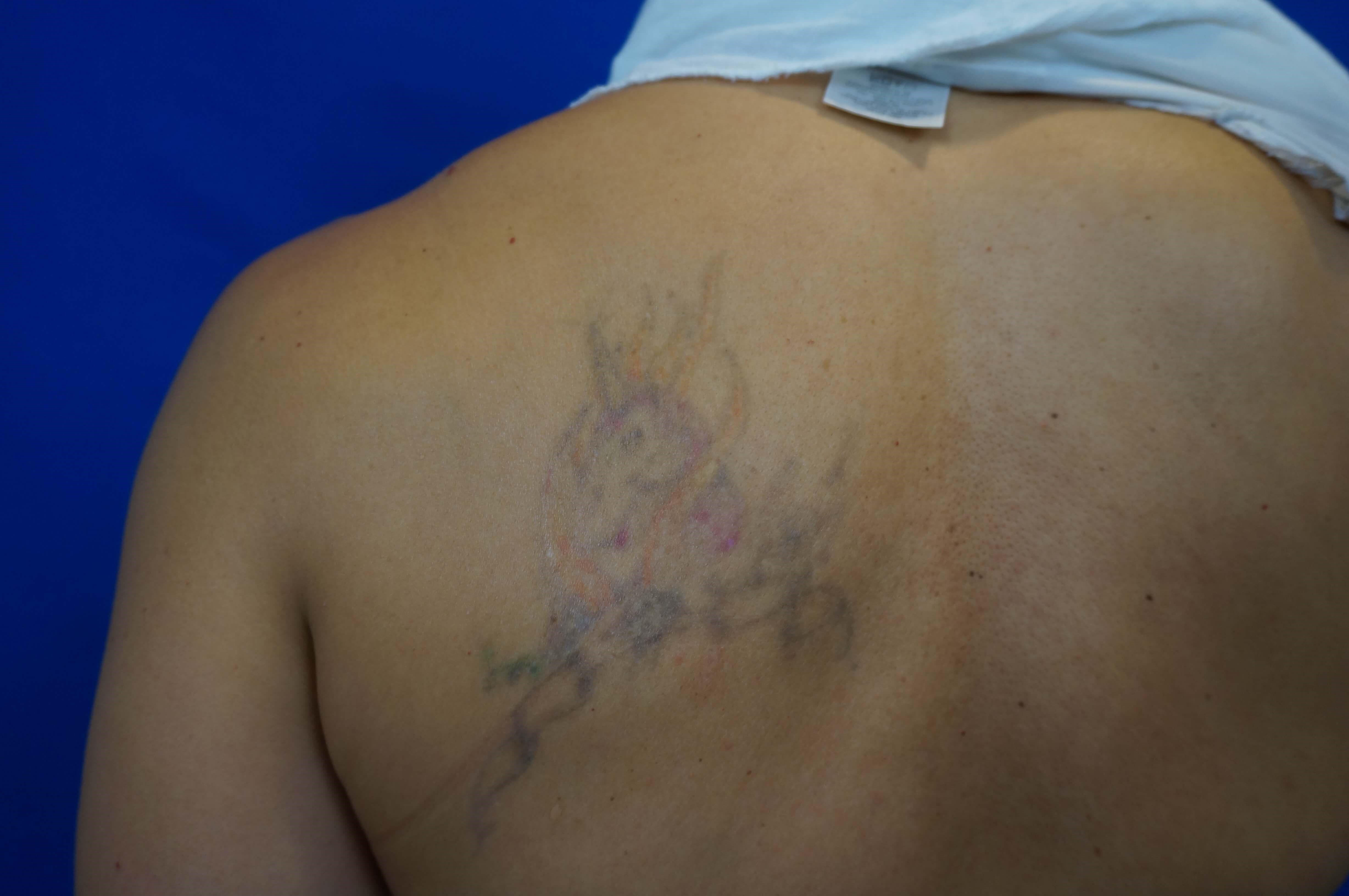 Laser tattoo removal Las Vegas Before Laser Tattoo Removal