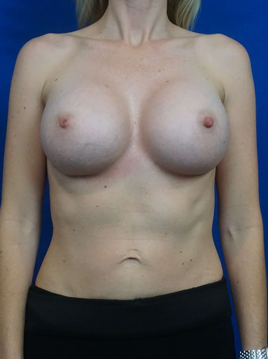Breast Augmentation Revision After Revision