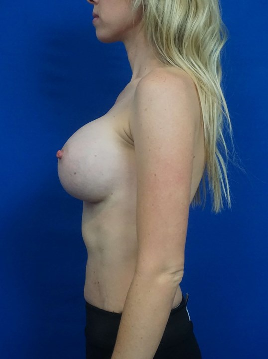 Breast Implant Revision Vegas After