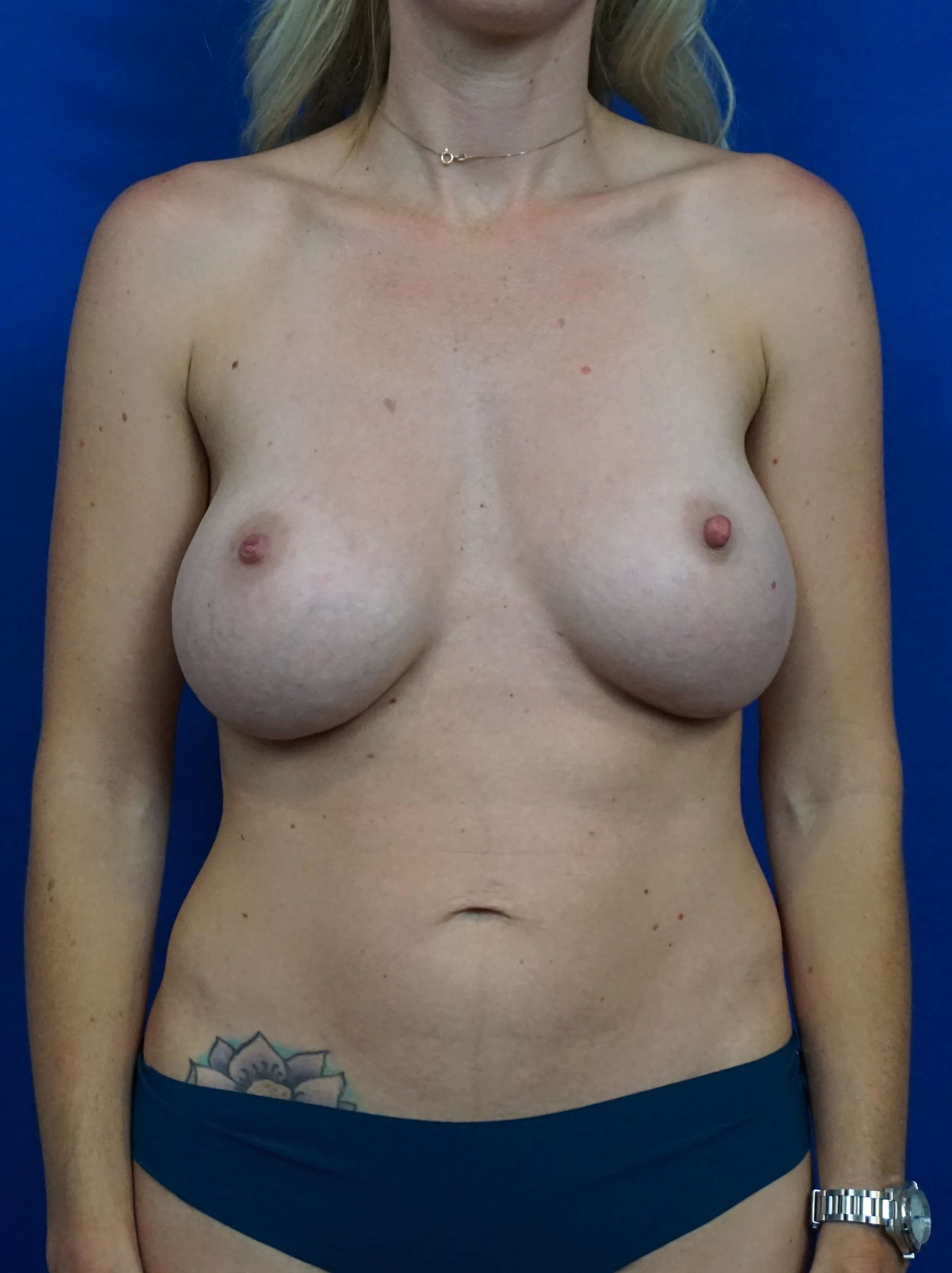 Breast Augmentation Revision Before Revision