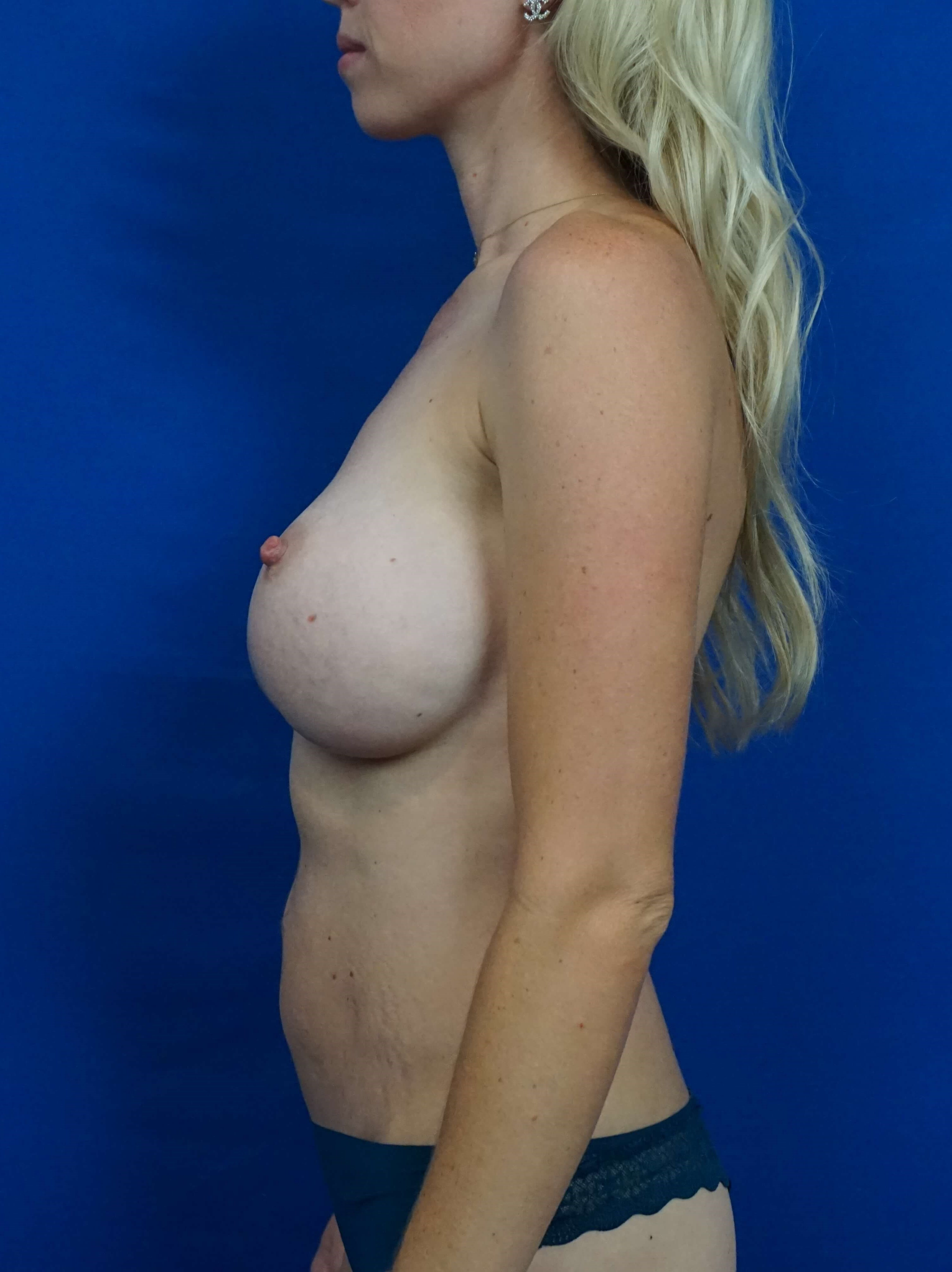 Breast Implant Revision Vegas Before