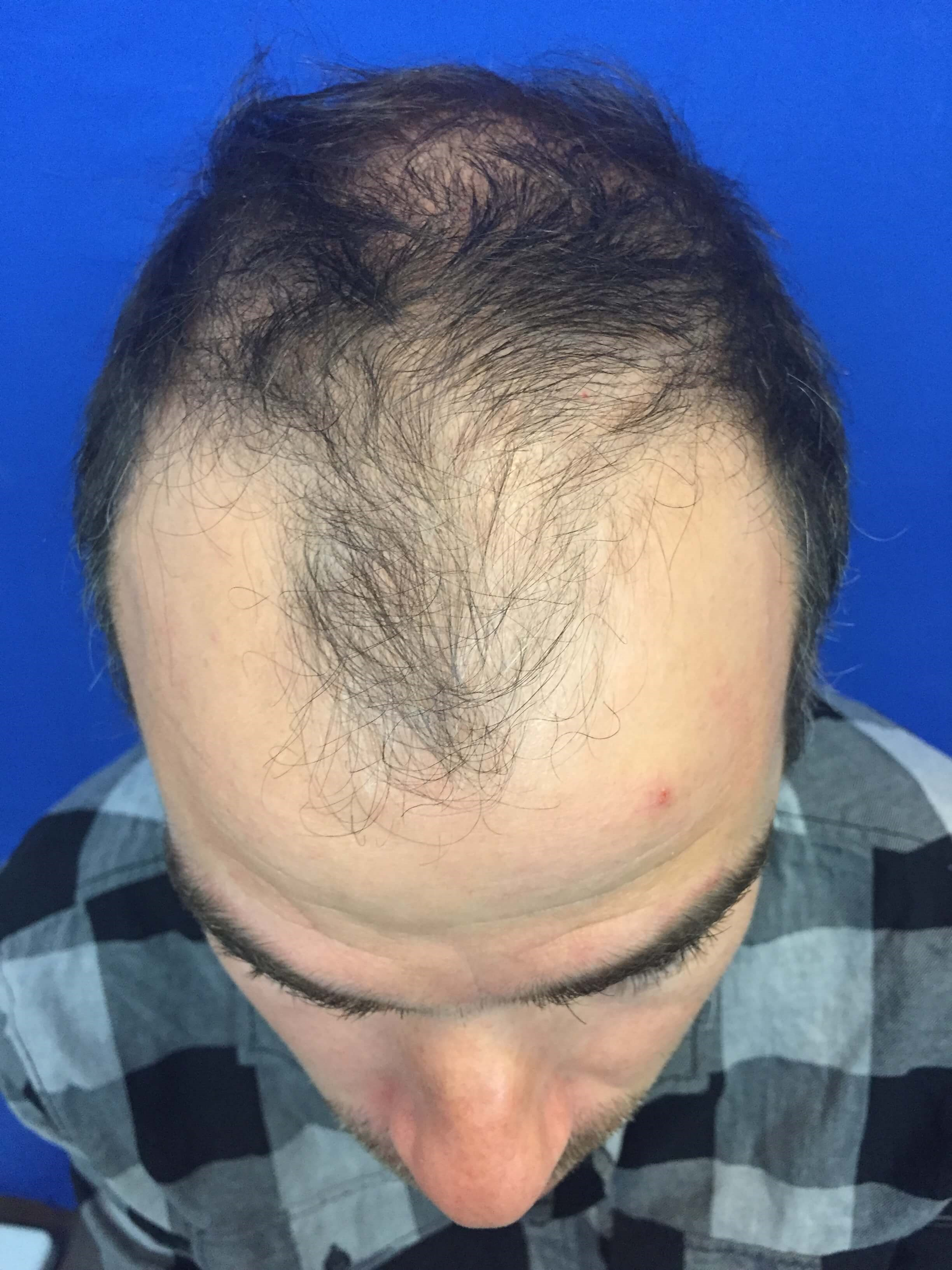 Hair Transplant Before & After Before Hair Restoration
