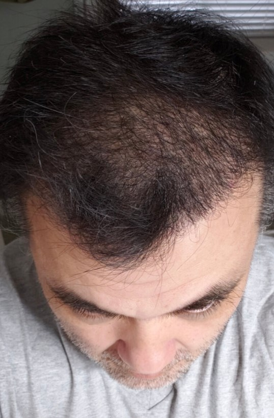 Hair Transplant Before & After After Hair Transplant