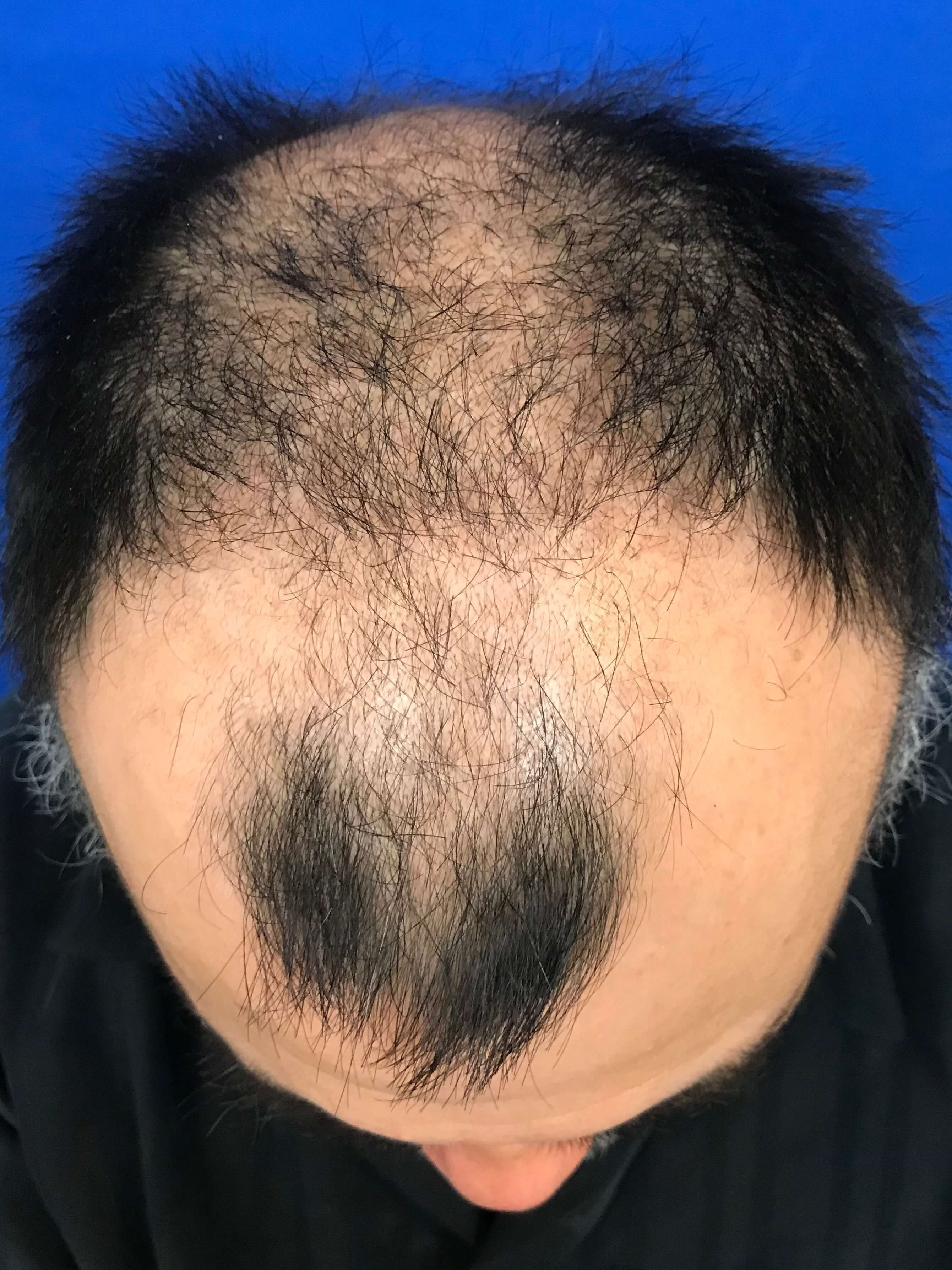 Hair Transplant Before & After Before Hair Transplant