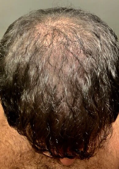 Hair Transplant Before & After After
