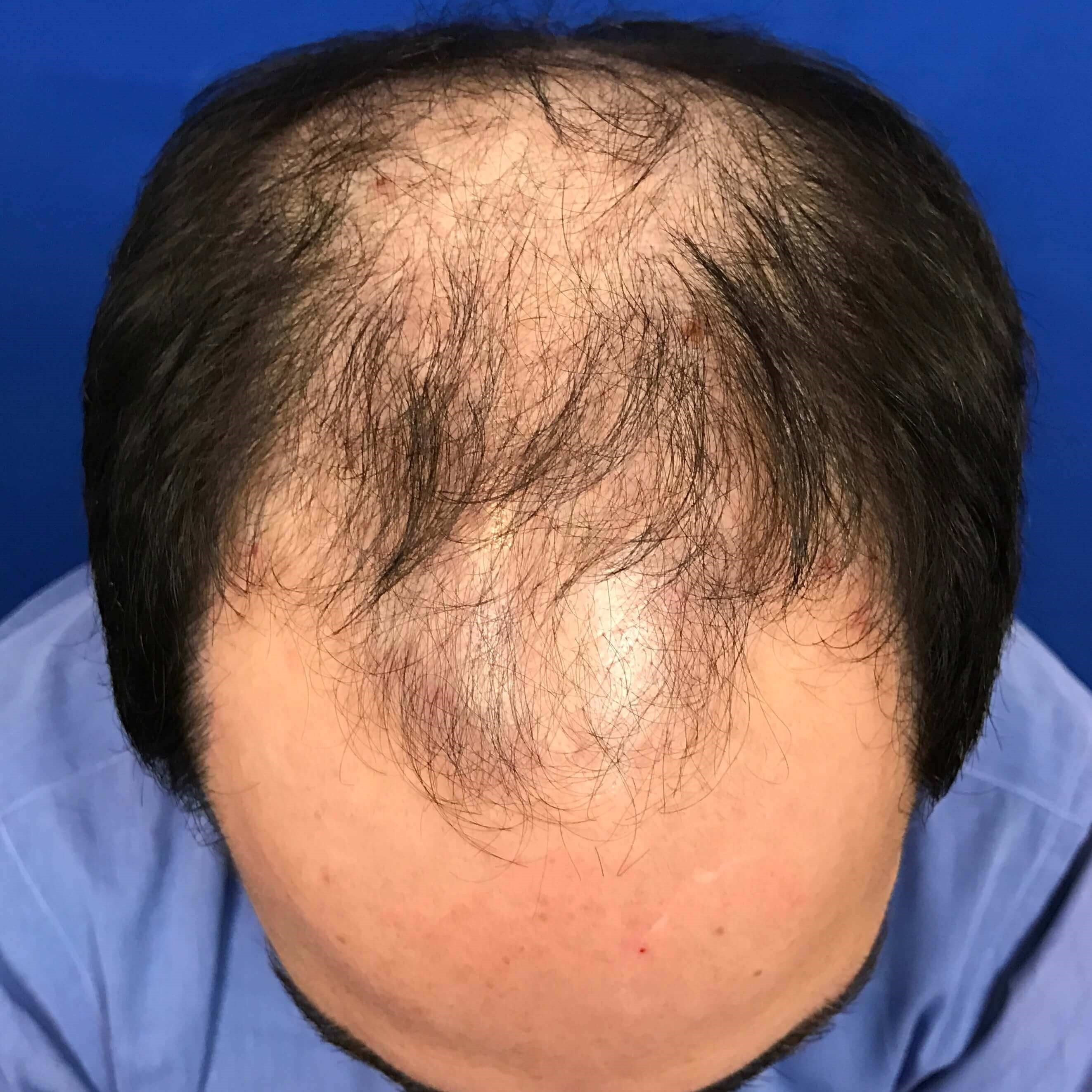 Hair Transplant Before & After Before