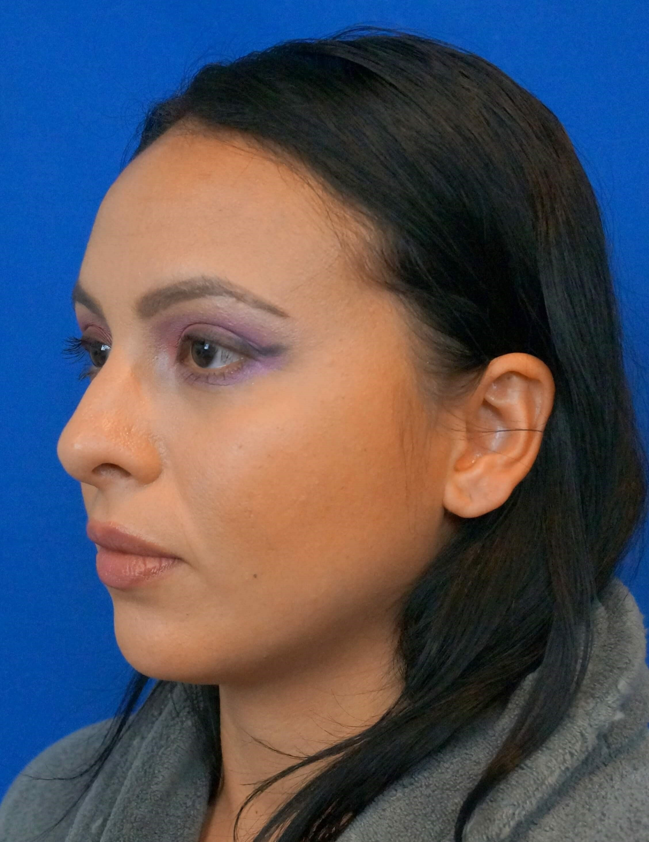 Rhinoplasty Surgeon Before