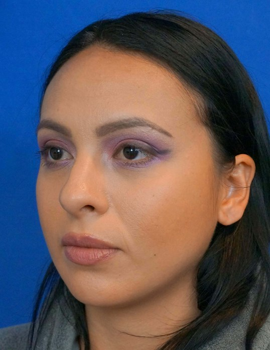 Rhinoplasty Surgeon Las Vegas Before Rhinoplasty Picture