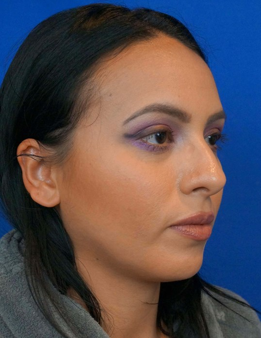 Rhinoplasty Society Surgeon Before Rhinoplasty Picture
