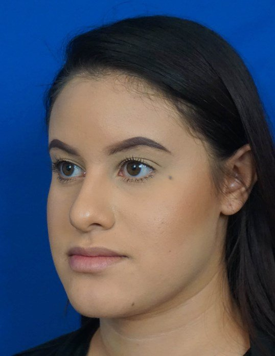 Rhinoplasty Surgery Before Rhinoplasty Picture