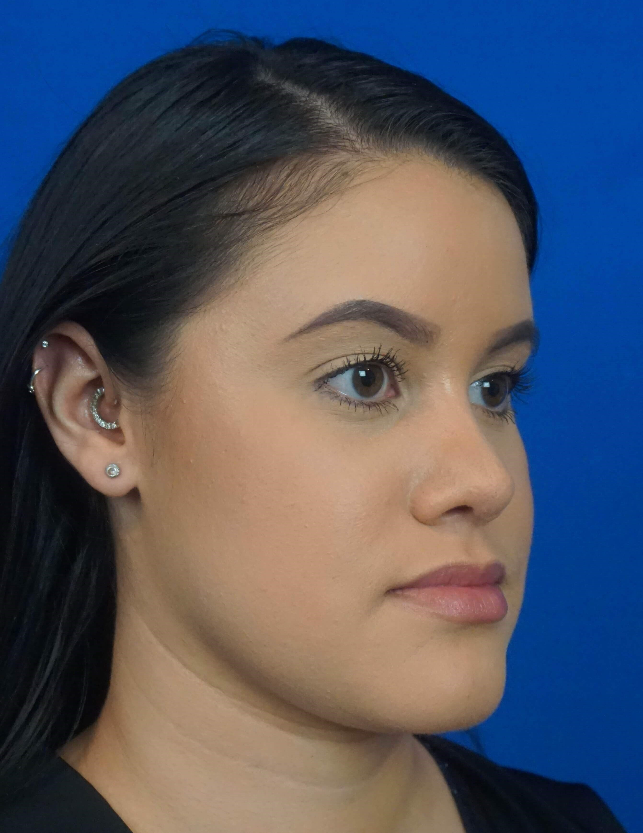Finding The Best Rhinoplasty Surgeon for your Nose