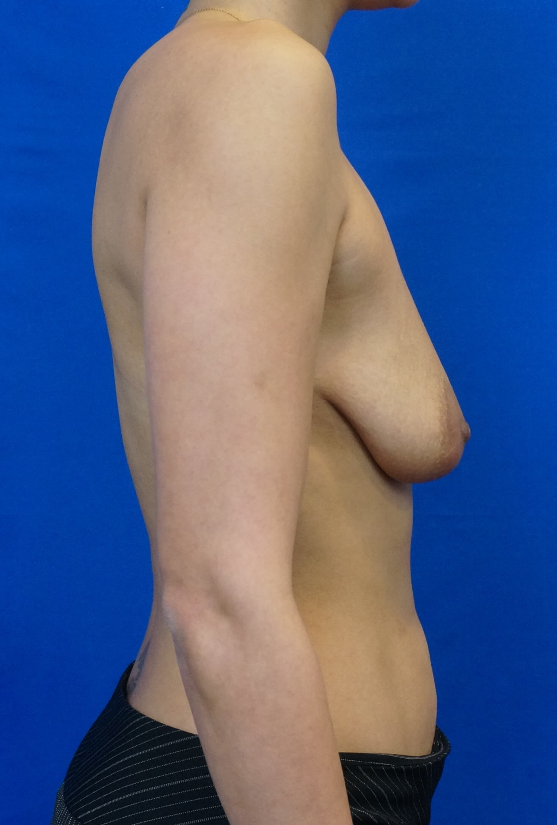 Side Lift  Breast Augmentation Before