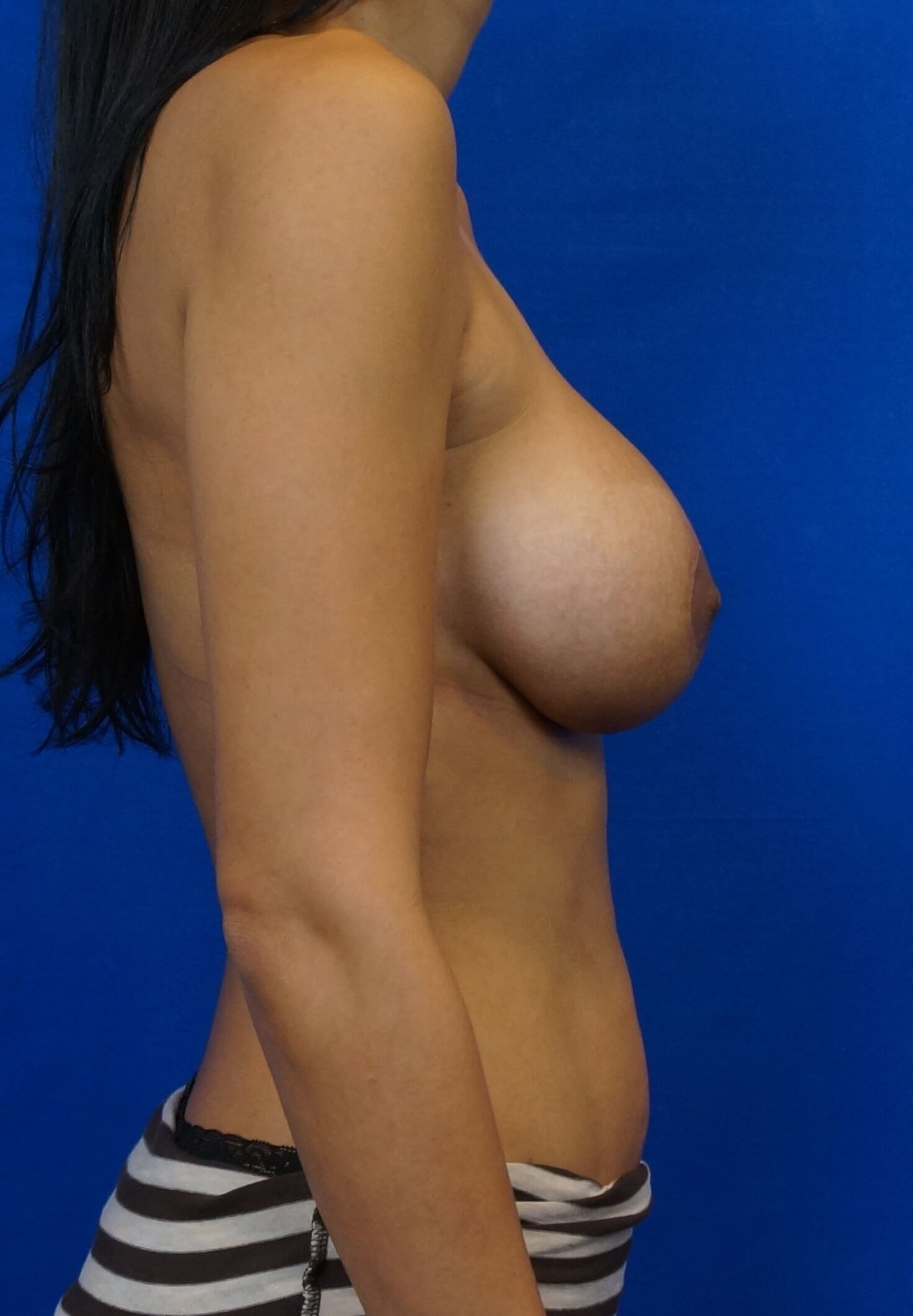Side Lift  Breast Augmentation After