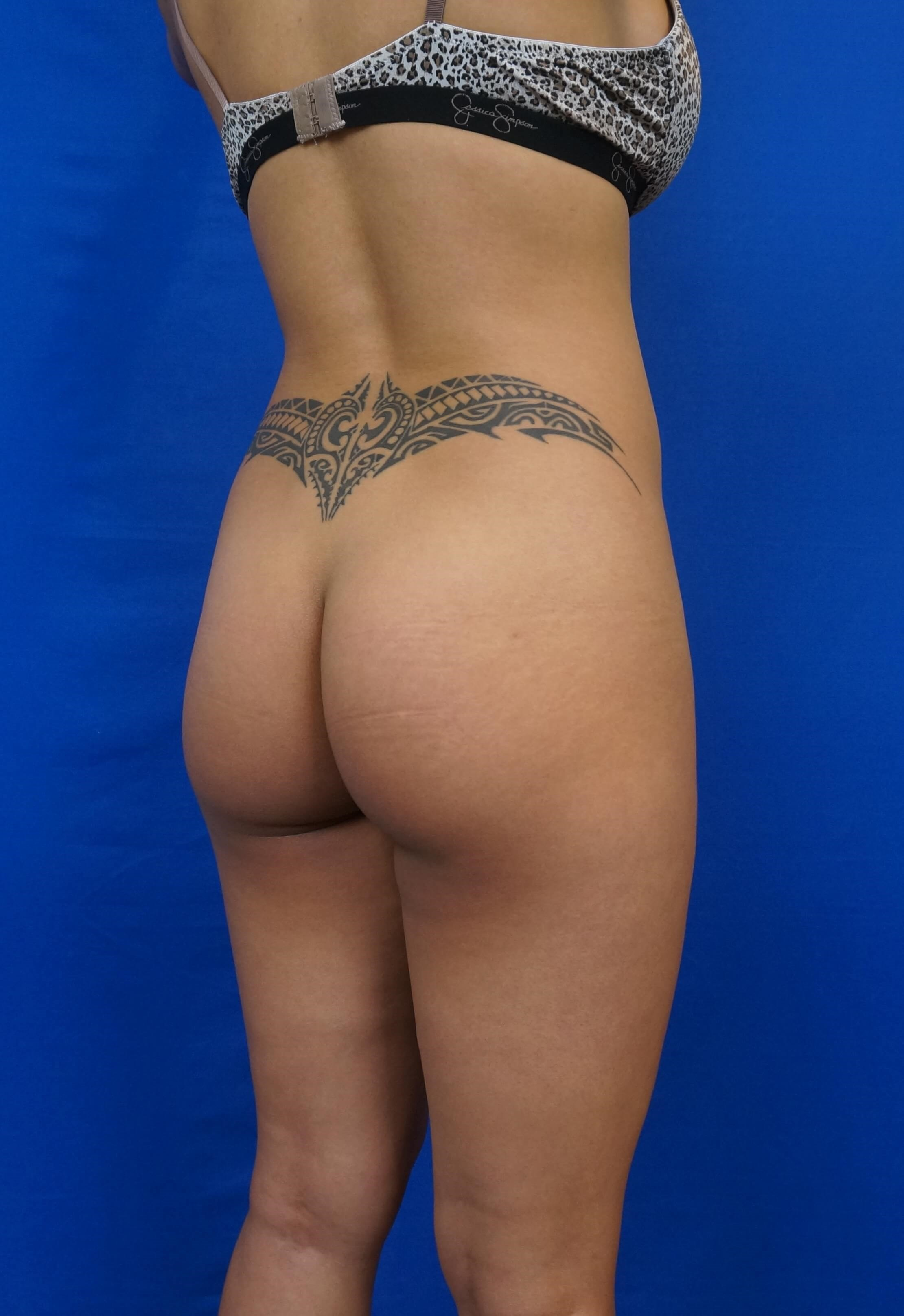 Gluteal Augmentation Before