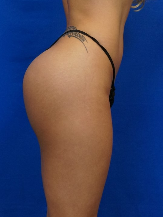 Gluteal Augmentation After