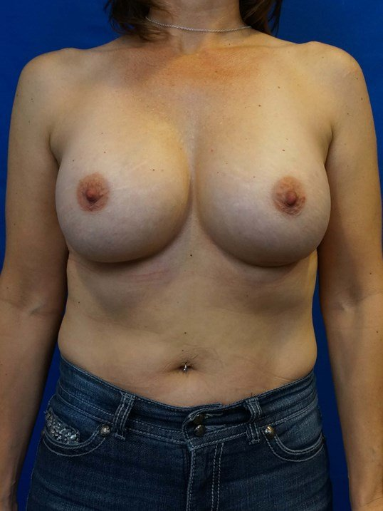 Front View Breast Implant After