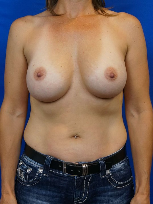 Front View Breast Implant Before