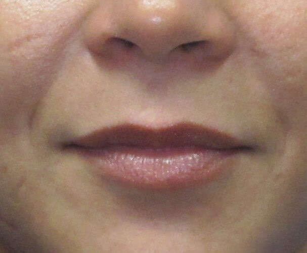 Lip Augmentation with Filler Before