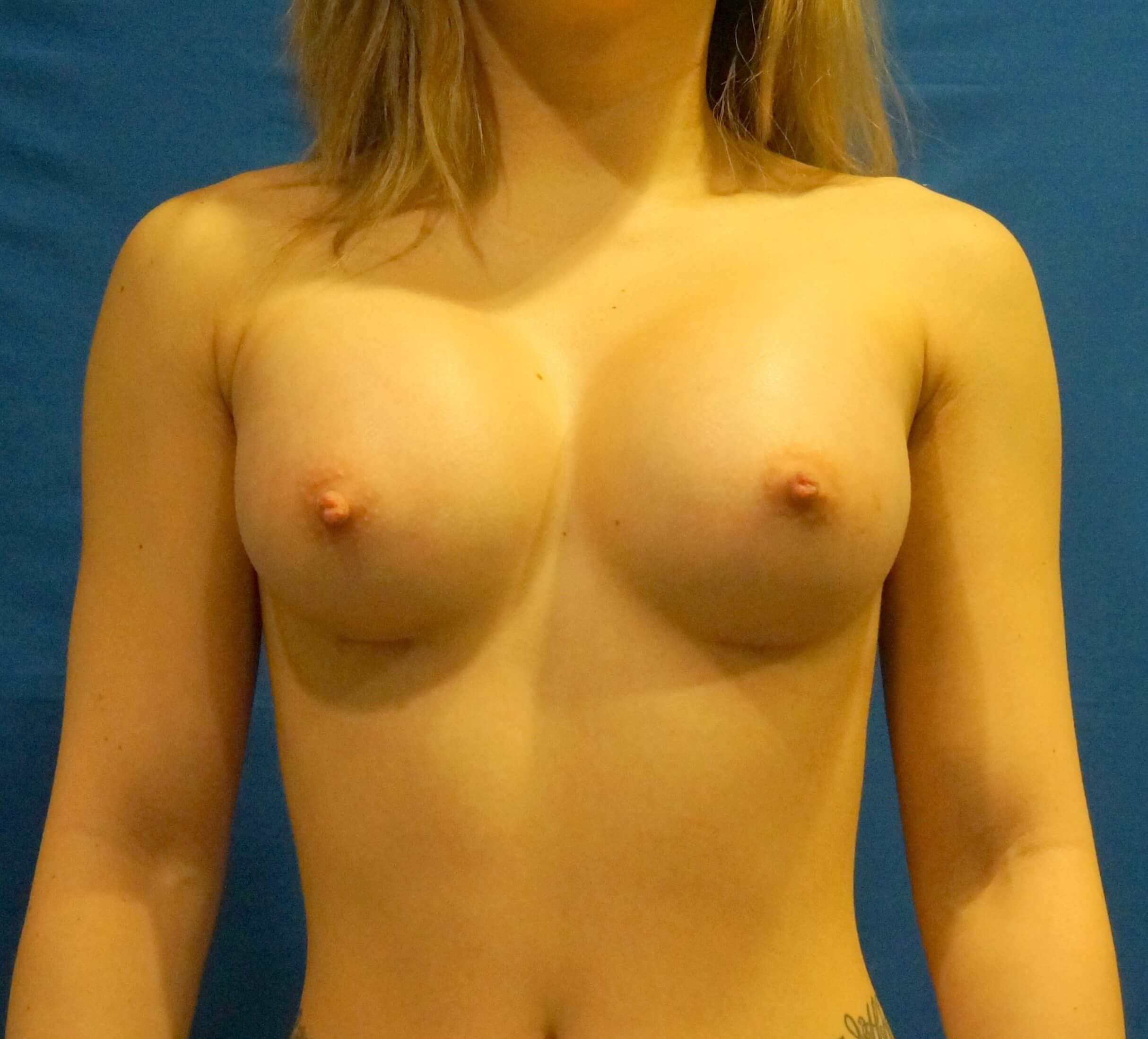 Breast Implant After