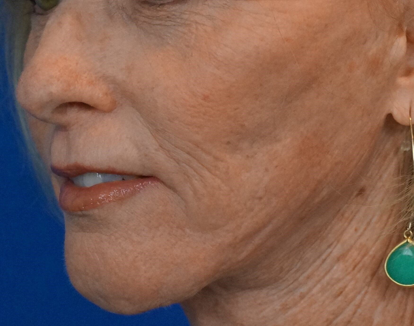 Deep Professional Facial Peel Before