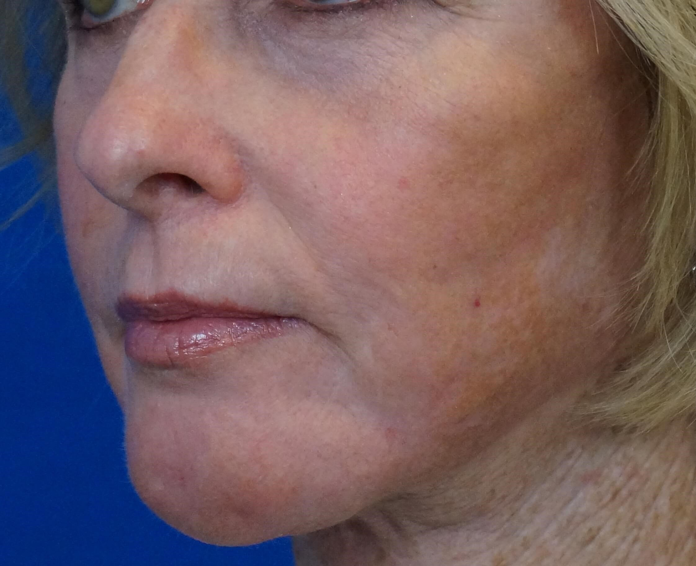 Deep Professional Facial Peel After