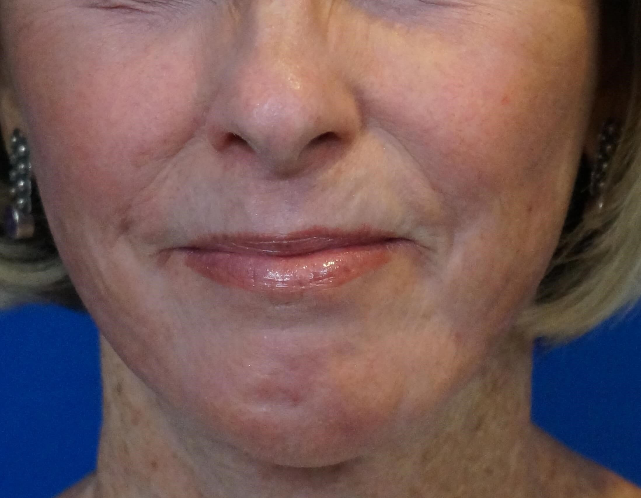 Chemical Phenol Peel After