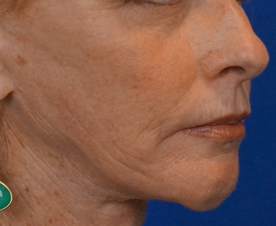 Professional Chemical Peel Before