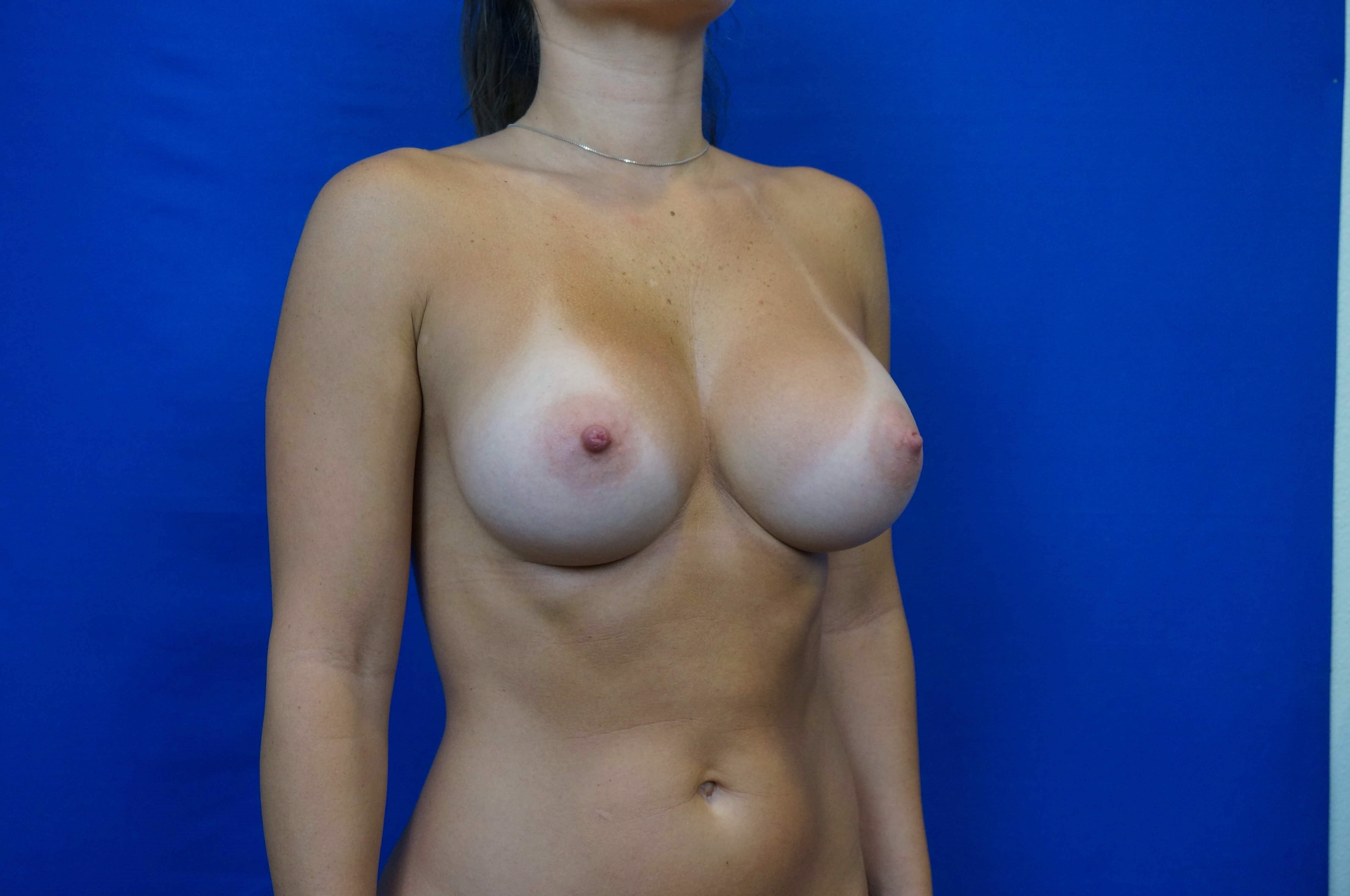 Three Quarters Breast Aug After